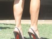 kim-kardashian-psoriasis-benen