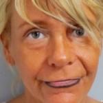 zonnebankmoeder Patricia Krentcil